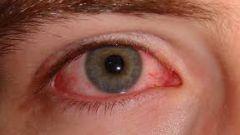Как лечить глаза