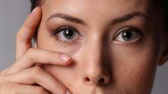 Почему мешки под глазами
