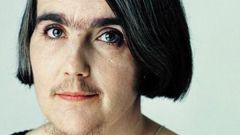 Правда и мифы об избыточном росте волос у женщин