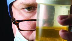 Why smells like urine