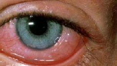 Что такое глазной клещ