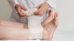 Как лечить диабетические язвы ног народными средствами