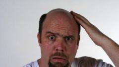 Bald men: how to restore hair