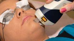 Что такое лазерная наноперфорация лица