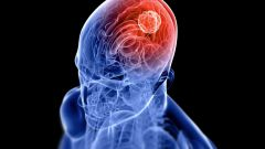 If treated brain cancer? Struggle for life!