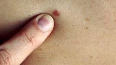 Карцинома: симптомы, лечение, причины