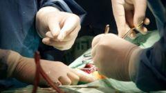 Как вырезают аппендицит
