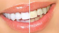 Как дома самому отбелить зубы