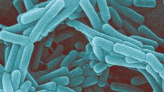 What is the pathogenic microflora