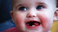 Когда прорезываются зубы у ребенка