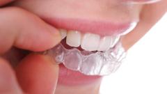 Как ставят пластинку на зубы
