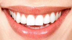 Как стоматологи обозначают номера зубов