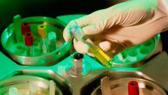Что такое биохимический анализ крови