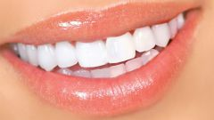 What to do if you have yellow teeth