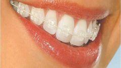 Исправление неправильного прикуса зубов