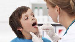 Как лечить гнойную ангину у ребенка 3 лет