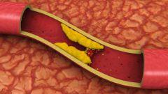 Атеросклероз: причины, симптомы, профилактика