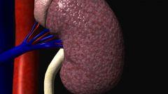 Инфаркт почки: причины, симптомы, лечение