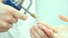 Прижигание бородавок жидким азотом: плюсы и минусы