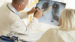 Рак легких: симптомы, диагностика и лечение