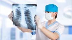 Как диагностировать воспаление легких по симптомам