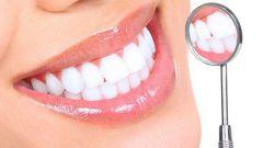 Как отбеливают зубы в стоматологии