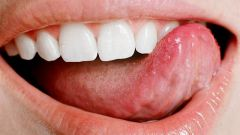 Sores under tongue: how to treat
