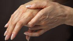 Как лечить сильный ушиб запястья