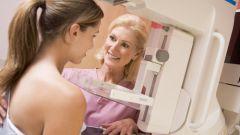 Что такое мастопатия молочной железы