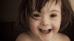 Является ли синдром Дауна наследственным заболеванием