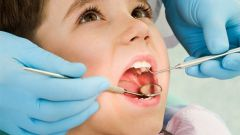 How to treat caries in children
