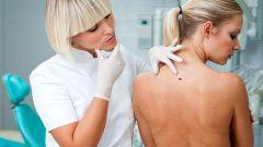 Как и где проверить родинки на онкологию