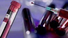 Что такое СПИД, как он проявляется