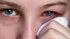 How to remove black eye