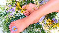 Как выглядят натоптыши на ногах