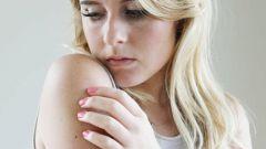 Как снизить чувствительность кожи