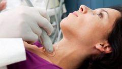 Signs of thyroid disease