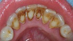 Зубной камень, как его лечить, профилактика
