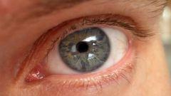 Как делают лазерную операцию на глазах
