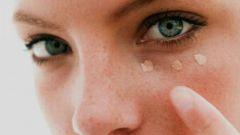 Причины появления синяков под глазами