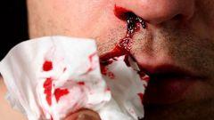 Сонник: кровь из носа