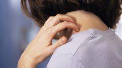 Стрептодермия: причины, симптомы и методы лечения