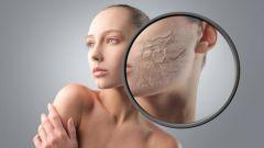 Шелушение кожи на лице: причины