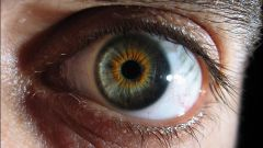 What are the first signs of cataract eyes