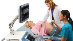 Что покажет доплерометрия при беременности