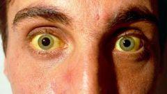 Почему желтеют белки глаз