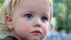 Как лечить ребенка от диатеза