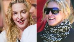Что случилось с зубами Мадонны
