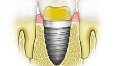 Как подобрать зубные импланты