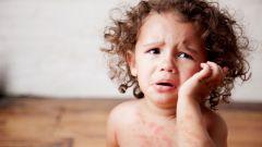 С какого возраста можно сдавать кровь на аллергены